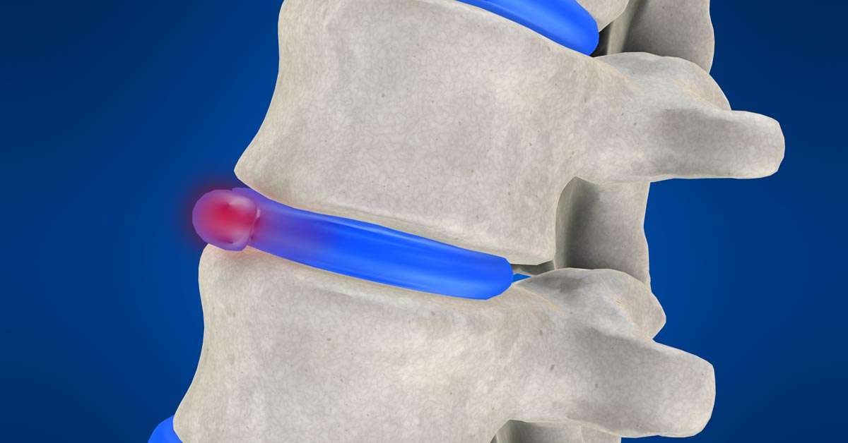Juneau, AK non-surgical disc herniation treatment